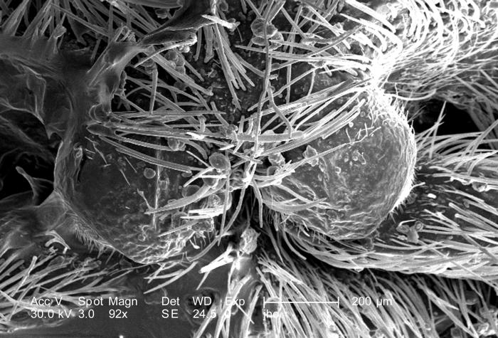 Double the magnification of PHIL 9898, at 92X, this scanning electron micrograph (SEM) showed the head region from an anterior view of a fem