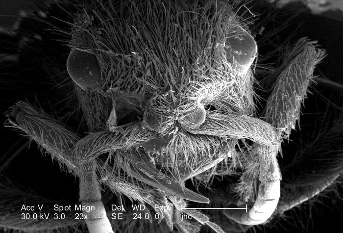 At a low magnification of only 23X, this scanning electron micrograph (SEM) showed the head region from an anterior view of a female velvet