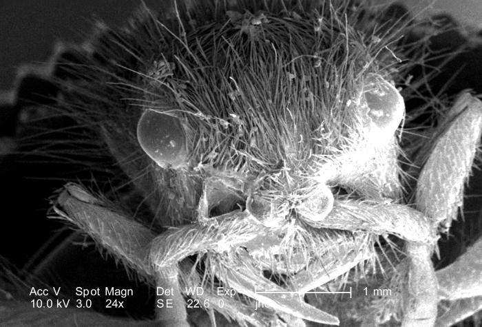 At a low magnification of only 24X, this scanning electron micrograph (SEM) showed the head region from an anterior view of a female velvet
