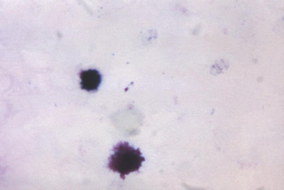 This thick film specimen reveals a young ameboid Plasmodium malariae trophozoite displaying non-distinct pigment.