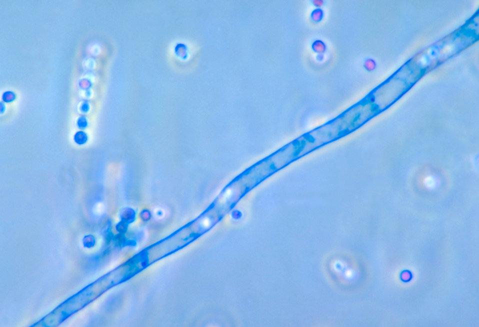 This photomicrograph reveals a conidiophore filament of the fungus Aspergillus fumigatus.
