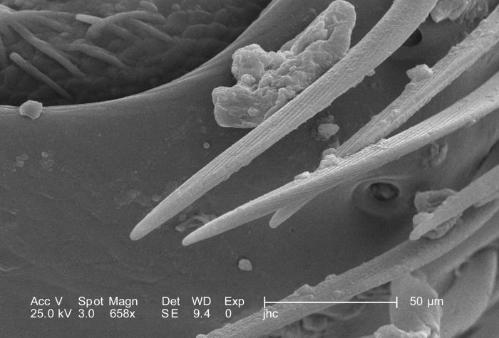 At a magnification of 658X, a number of time higher than PHIL 9888, this scanning electron micrograph (SEM) revealed the morphologic exoskel