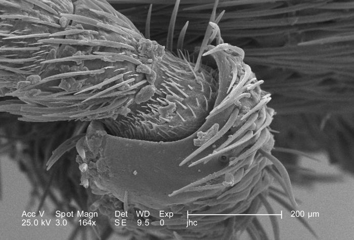 Magnified 164X, this scanning electron micrograph (SEM) revealed the morphologic exoskeletal details of a female velvet ant's, Dasymutilla s