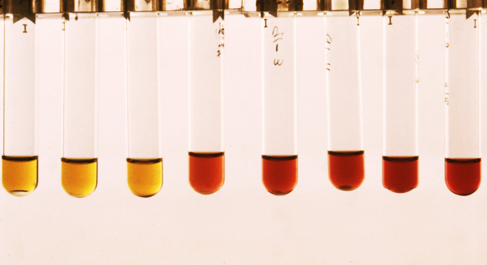 These are Mycoplasma broth tubes containing T-strain broth showing color changes.