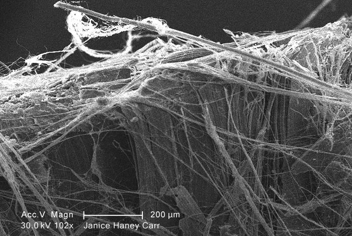 Under a moderate magnification of 102X, this scanning electron micrograph (SEM) revealed some of the microcrystalline ultrastructure exhibit