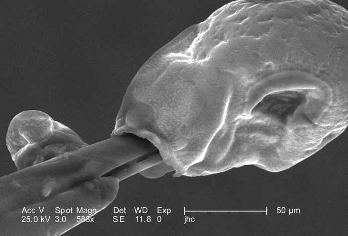 Under a moderately high magnification of 588X, this scanning electron micrograph (SEM) focused on the distal tip of a female 'velvet ant's',