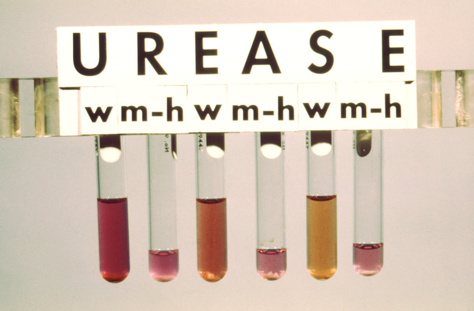 This urease test was used in the taxonomic identification of Mycobacteria spp. bacteria.