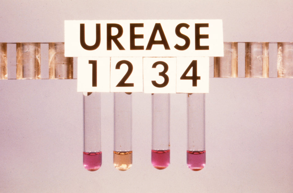 This was a urease test for taxonomic identification of Mycobacteria spp..
