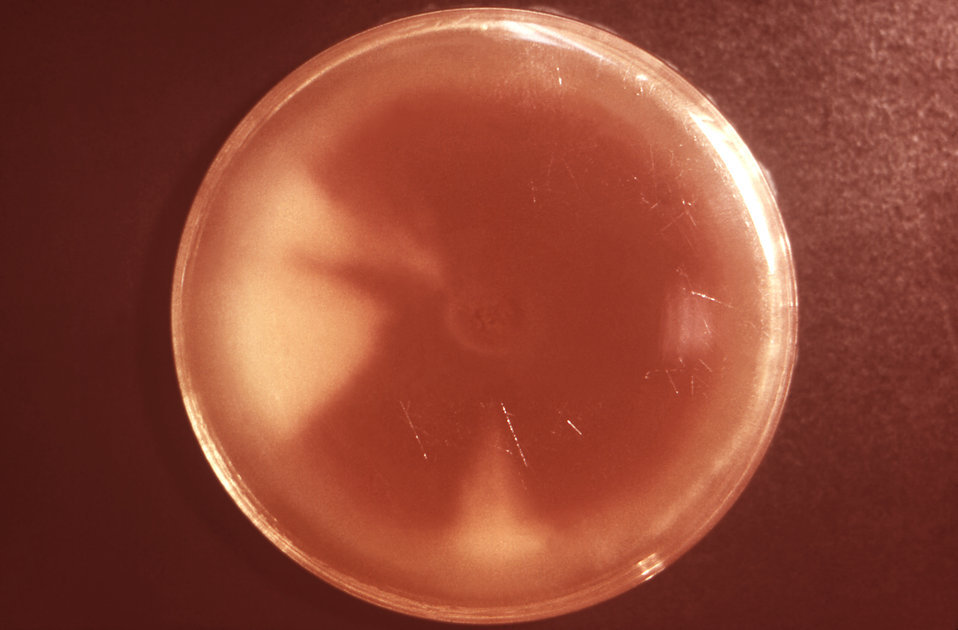This image depicts a reverse view, i.e., viewed from the back, of a Petri dish culture plate, which contained a colony of Trichophyton menta