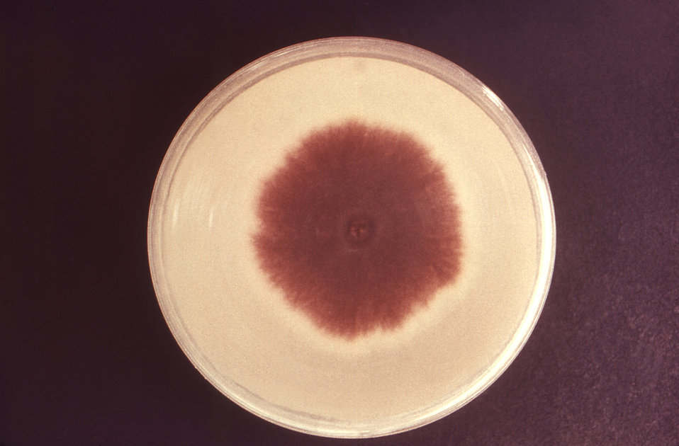 The Petri dish culture plate depicted here had been used to grow a colony of the dermatophytic fungus, Trichophyton mentagrophytes. Though t