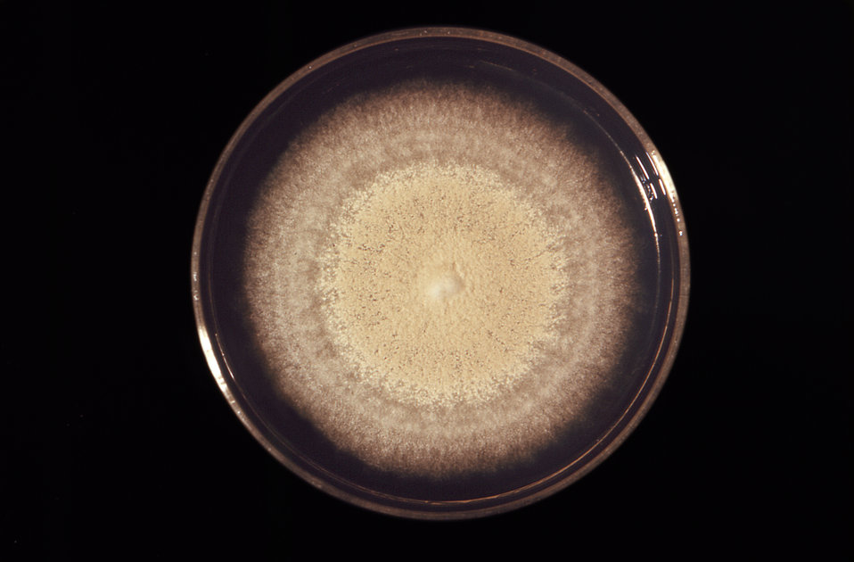This is a front view of a Petri dish culture plate that had cultivated a large colony of the dermatophytic fungus, Trichophyton mentagrophyt