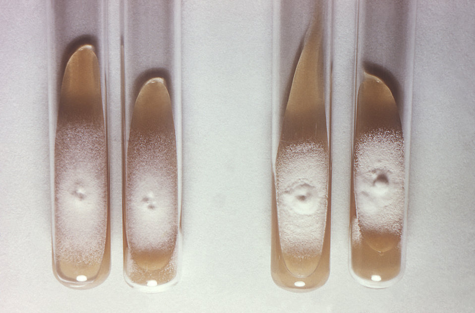 This image depicts the results of a nutrition test upon two strains of the dermatophytic fungus, Trichophyton mentagrophytes. On the left we