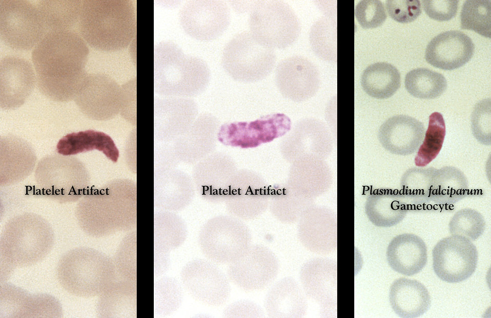 These thin film Giemsa stained micrographs reveal how fused platelets can resemble a Plasmodium falciparum gametocyte.