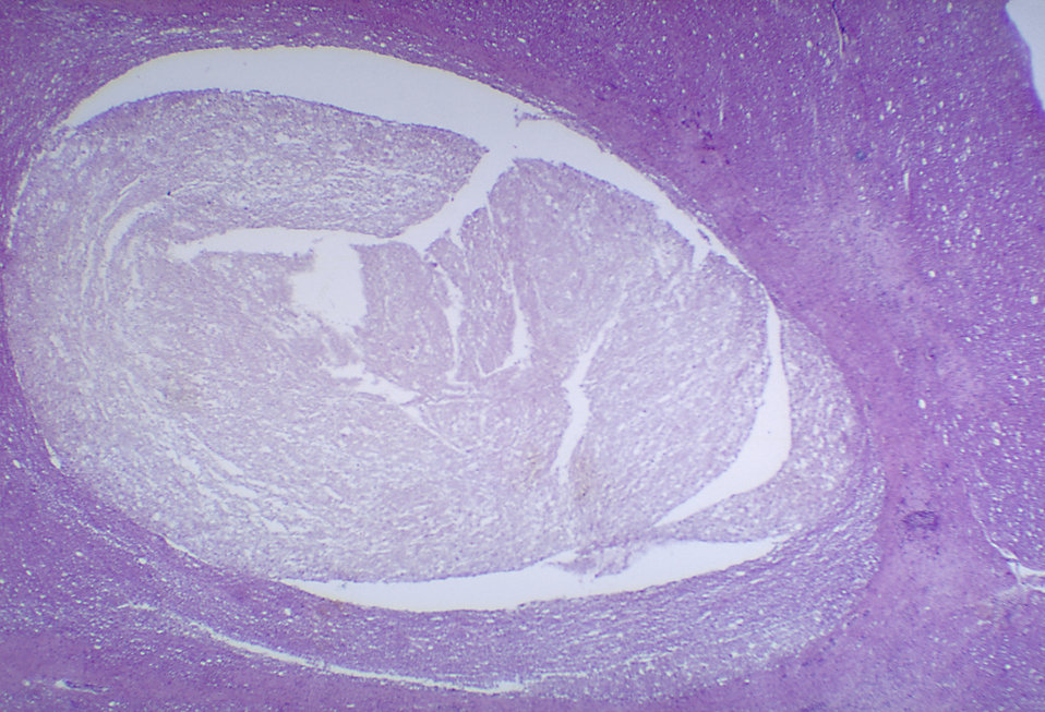 A photomicrograph of the thoracic spinal cord depicting degenerative changes due to Polio Type III.