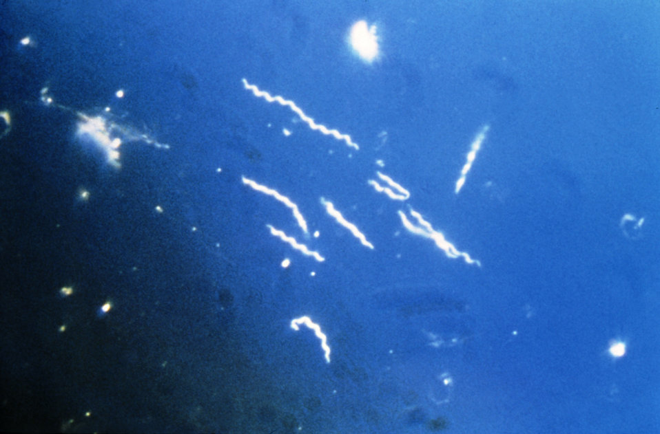 Using darkfield microscopy technique, this photomicrograph, magnified 400x, reveals the presence of spirochete, or 'corkscrew-shaped' bacter