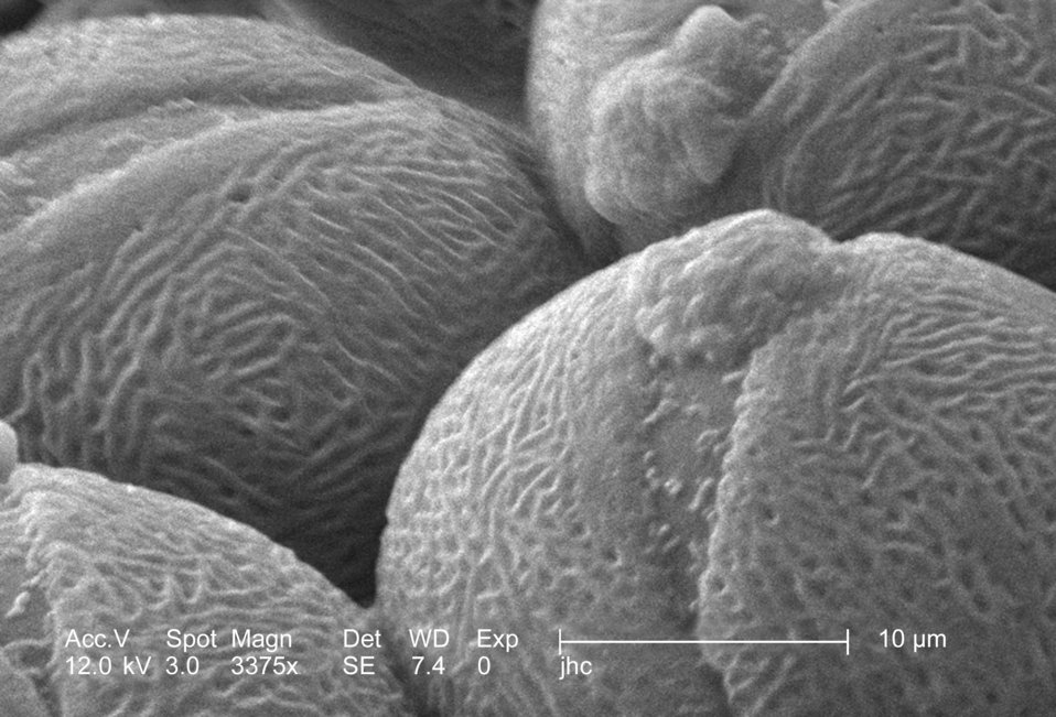 Under a high magnification of 3375x, this scanning electron micrograph (SEM) revealed some of the morphologic ultrastructure found amongst a