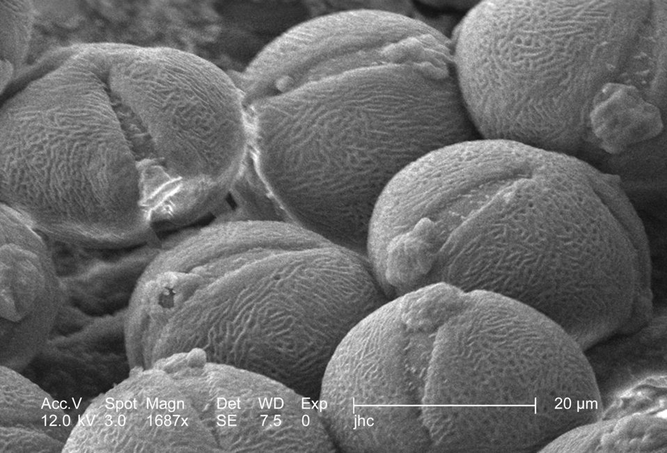 Under a moderately high magnification of 1687x, this scanning electron micrograph (SEM) revealed some of the morphologic ultrastructure foun