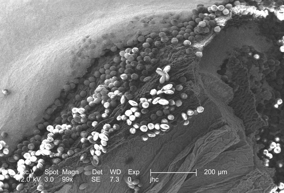 At a low magnification of 99x, this scanning electron micrograph (SEM) revealed some of the morphologic ultrastructure found amongst a colle