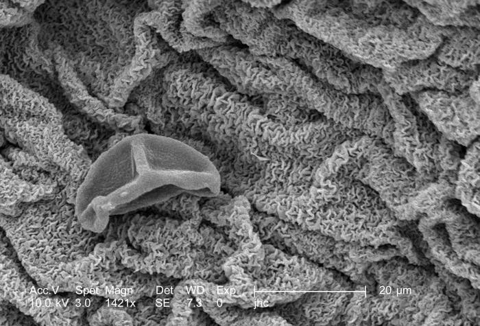 Under a high magnification of 1421x, this scanning electron micrograph (SEM) revealed some of the morphologic ultrastructure found on the pe