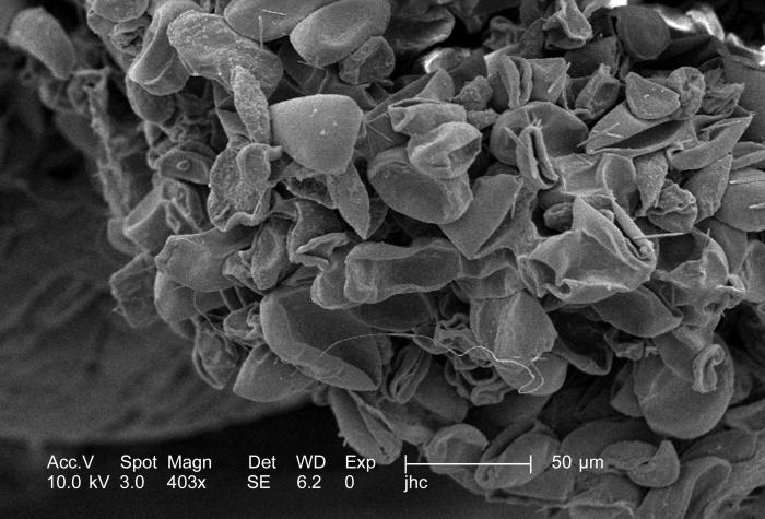 Under a moderately high magnification of 403x, this scanning electron micrograph (SEM) revealed some of the morphologic ultrastructure found