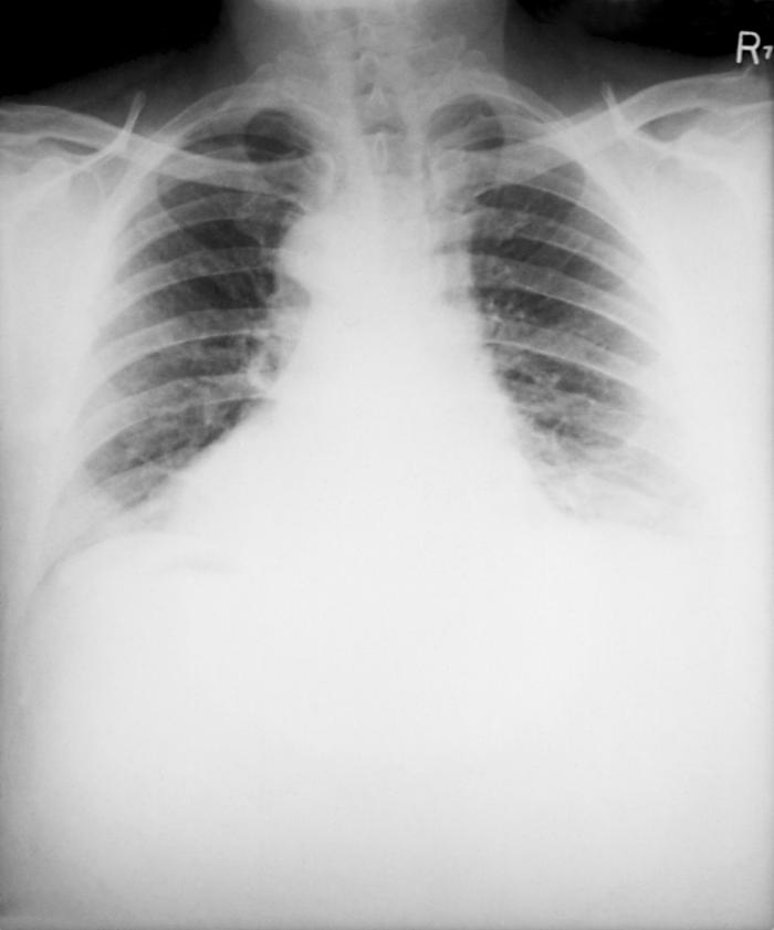 This posteroanterior (PA) chest x-ray was taken 4 mo. after the onset of anthrax in a 46 yr. old male.