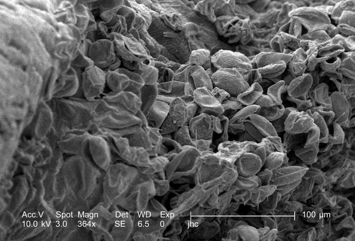 Magnified 364x, this scanning electron micrograph (SEM) revealed some of the morphologic ultrastructure found on the petal of an unidentifie
