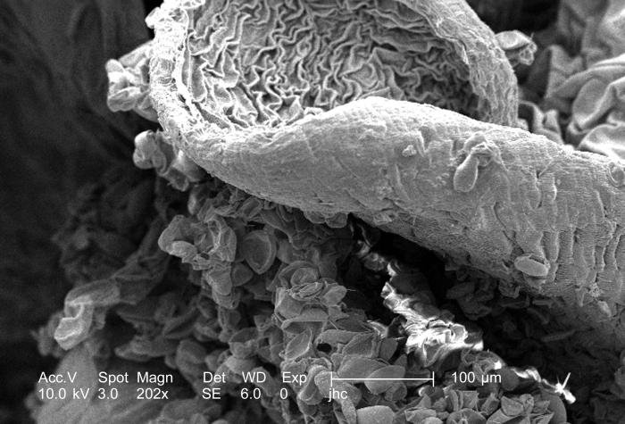 Magnified 202x, this scanning electron micrograph (SEM) revealed some of the morphologic ultrastructure found on the petal of an unidentifie