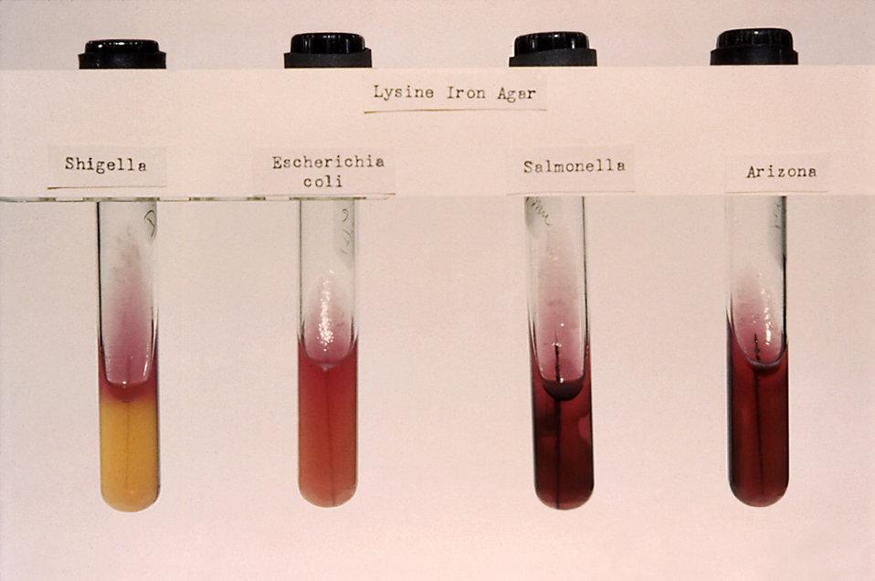 These were Arizona sp., E. coli, Salmonella sp. and Shigella sp. lysine iron agar stab cultures.