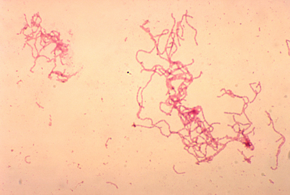 A rabbit blood culture photomicrograph of Haemophilus ducreyi bacteria using Gram-stain technique.