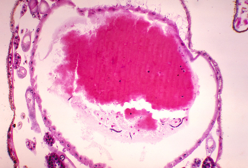 A photomicrograph revealing the histology of Onchocerca volvulus developing in a Black Fly, Simulium ochraceum.
