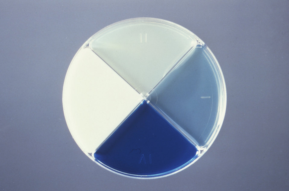 This is a Presumpto II quadrant plate developed by the CDC's Anaerobe Section for the identification of anaerobic organisms.
