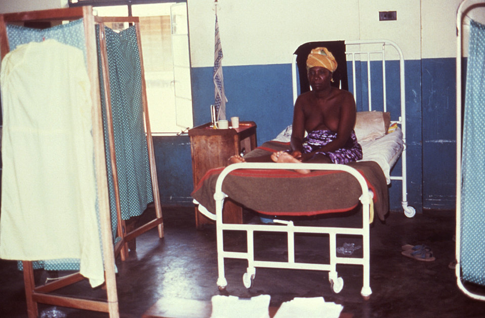 This is a 1977 image depicting a recovering female Lassa fever patient in Segbwema, Sierra Leone.