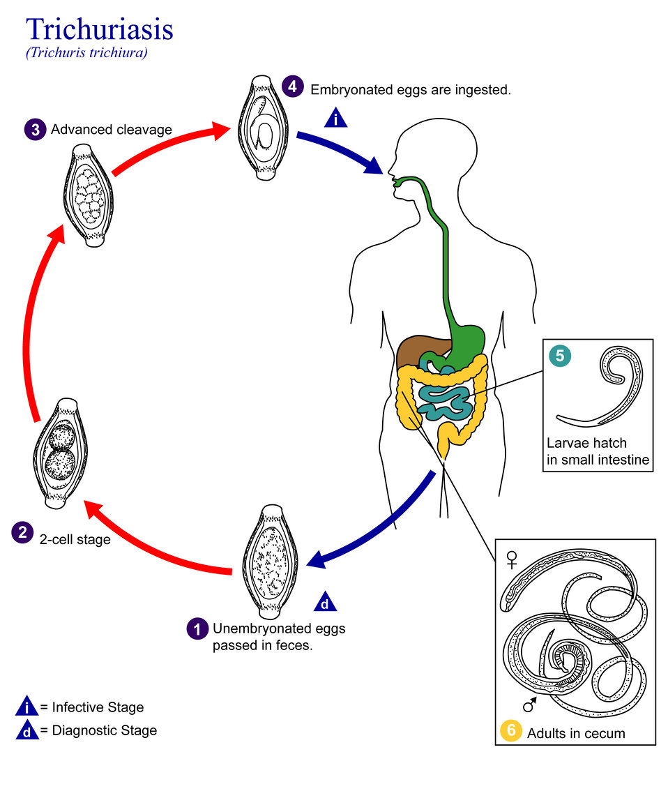 This is an illustration of the life cycle of Trichuris trichiura, the causal agent of Trichuriasis.