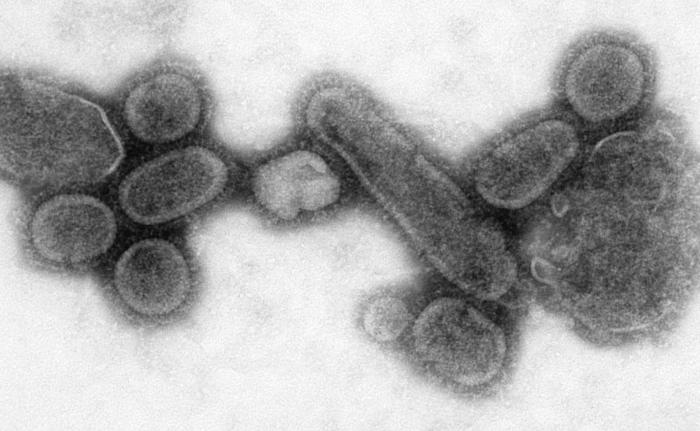 This negative stained transmission electron micrograph (TEM) showed recreated 1918 influenza virions that were collected from the supernatan