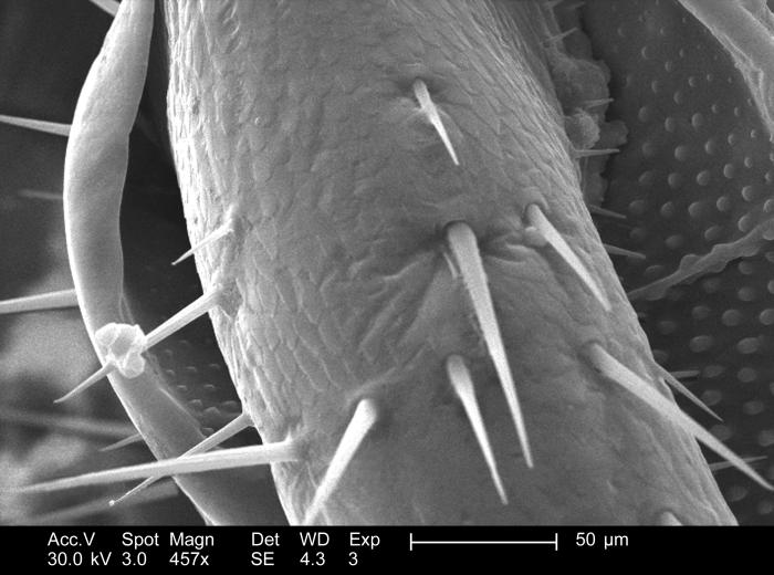 This 2005 scanning electron micrograph (SEM) depicted a region of the exoskeletal surface of a decreased roach found in a Decatur, Georgia h
