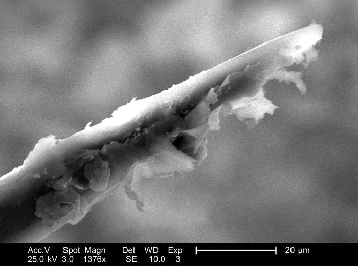 From a lateral perspective, and under a high magnification of 1376x, this scanning electron micrograph (SEM) depicted some of the ultrastruc