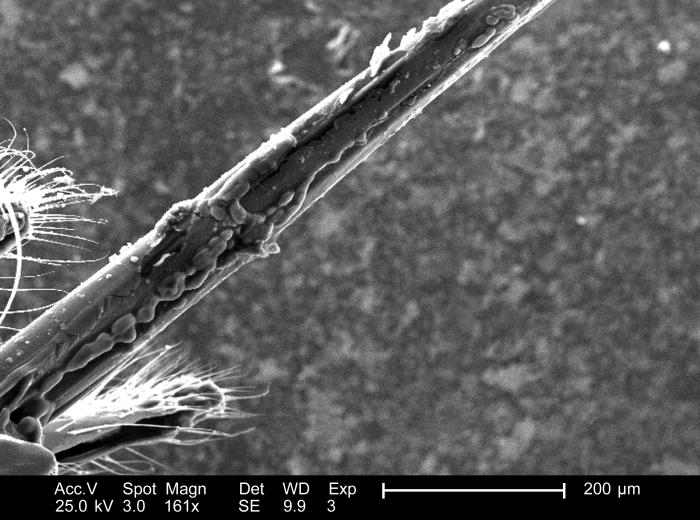 Under a low magnification of 161x, and a lateral perspective, this scanning electron micrograph (SEM) depicted some of the ultrastructural m