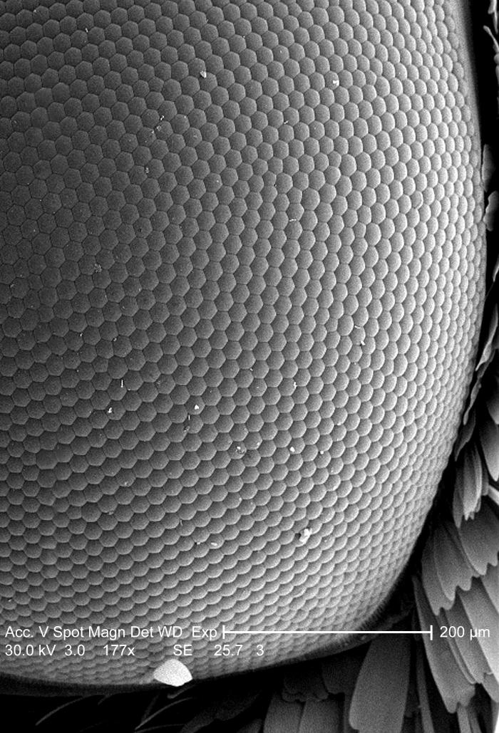 Under this relatively low magnification of 177x, this scanning electron micrograph (SEM) depicted a bird's-eye view of the surface of an uni