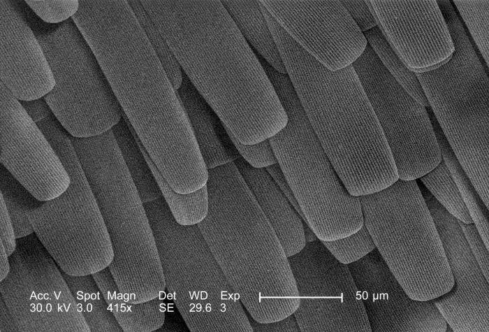 Viewed under a moderately-high magnification 415x, this scanning electron micrograph (SEM) depicted the surface details of an unidentified i