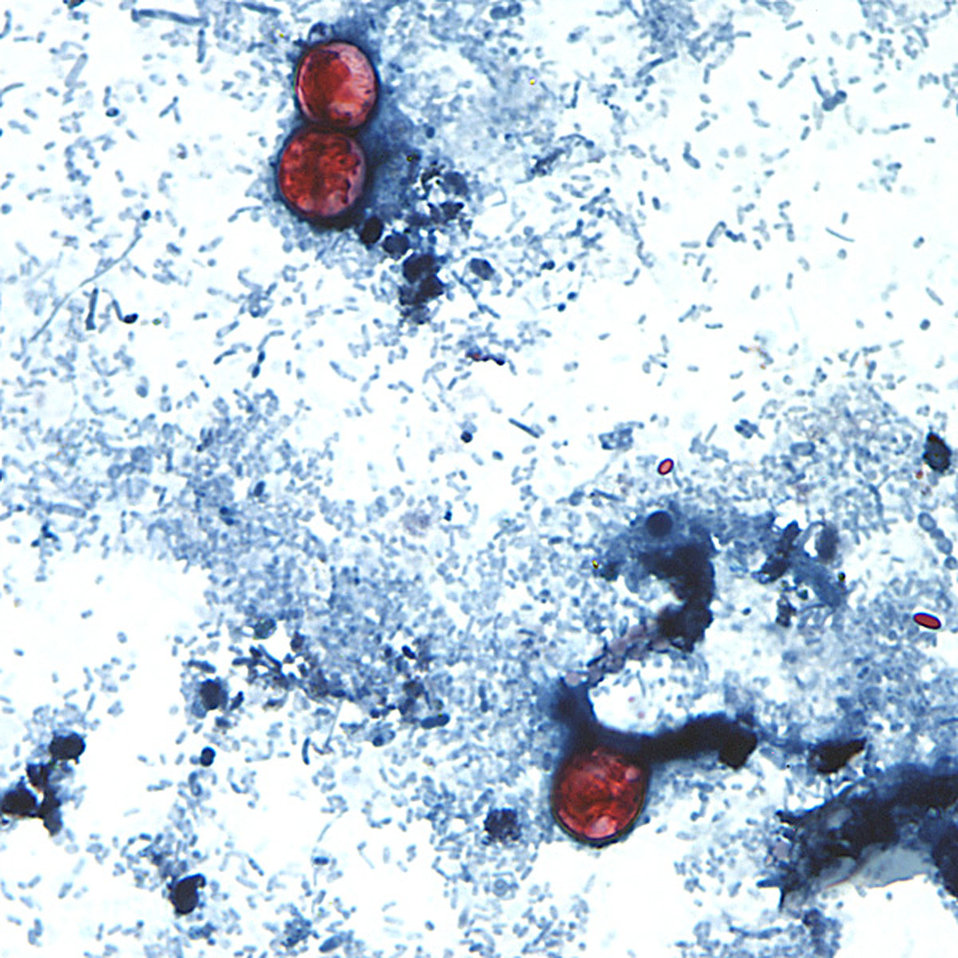 This photomicrograph of a fresh stool sample, which had been prepared using a 10% formalin solution, and stained with safranin, revealed the