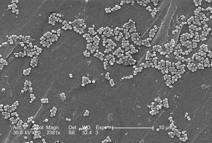This 2005 scanning electron micrograph (SEM) depicted numerous clumps of methicillin-resistant Staphylococcus aureus bacteria, commonly refe
