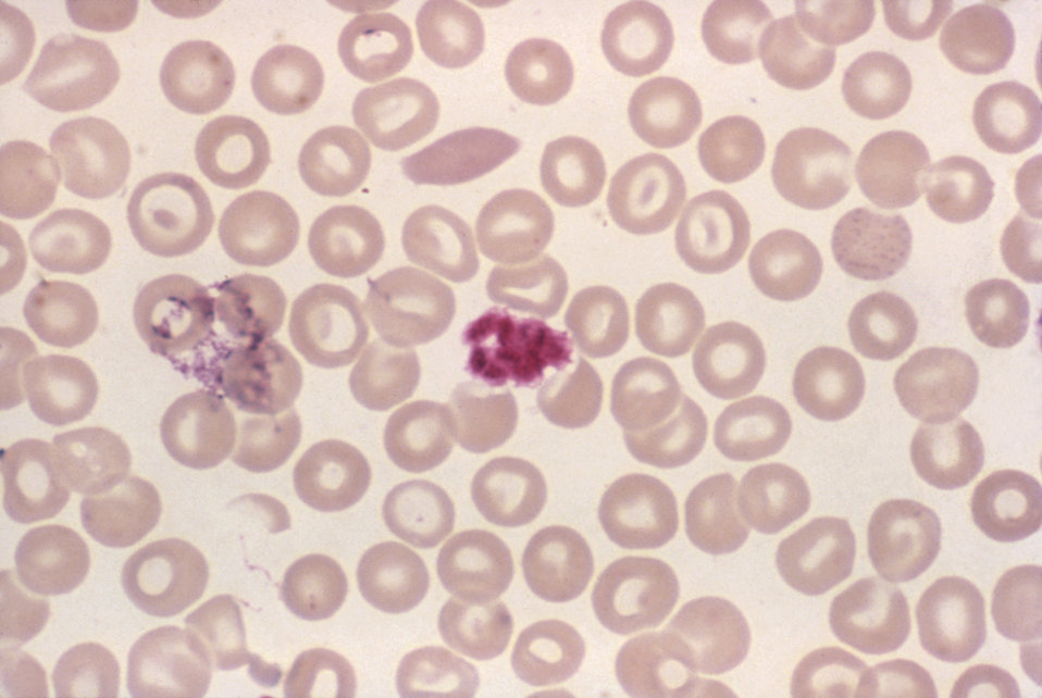 This blood smear micrograph revealed a clump of platelets that resembled a malarial schizont using Giemsa stain, Mag. 1000x.