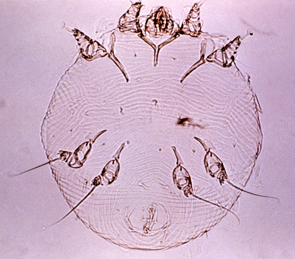 This micrograph depicts a ventral view of a cleared and mounted Sarcoptes scabei mite specimen.