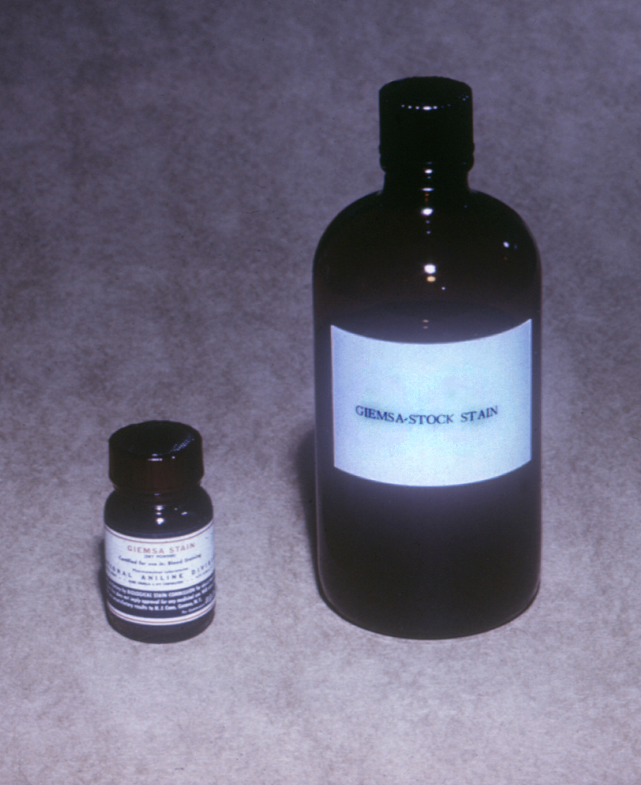 The Giemsa stain concentrate (Lt), and a stock solution of Giemsa stain (Rt) are used when preparing malarial microscope slides.