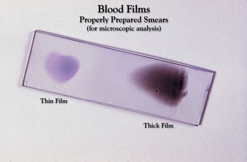 This Giemsa stained slide depicts an example of properly prepared thick and thin film blood smears to be examined.