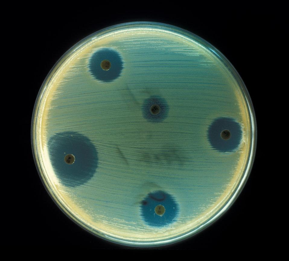 Aerobic bacteria, Staphylococcus aureus, cultured on an agar plate for drug sensitivity test in an anaerobic environment.