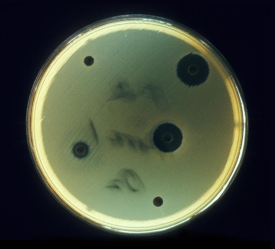 Aerobic bacteria, Escherichia coli, cultured on an agar plate for drug sensitivity test in an anaerobic environment.