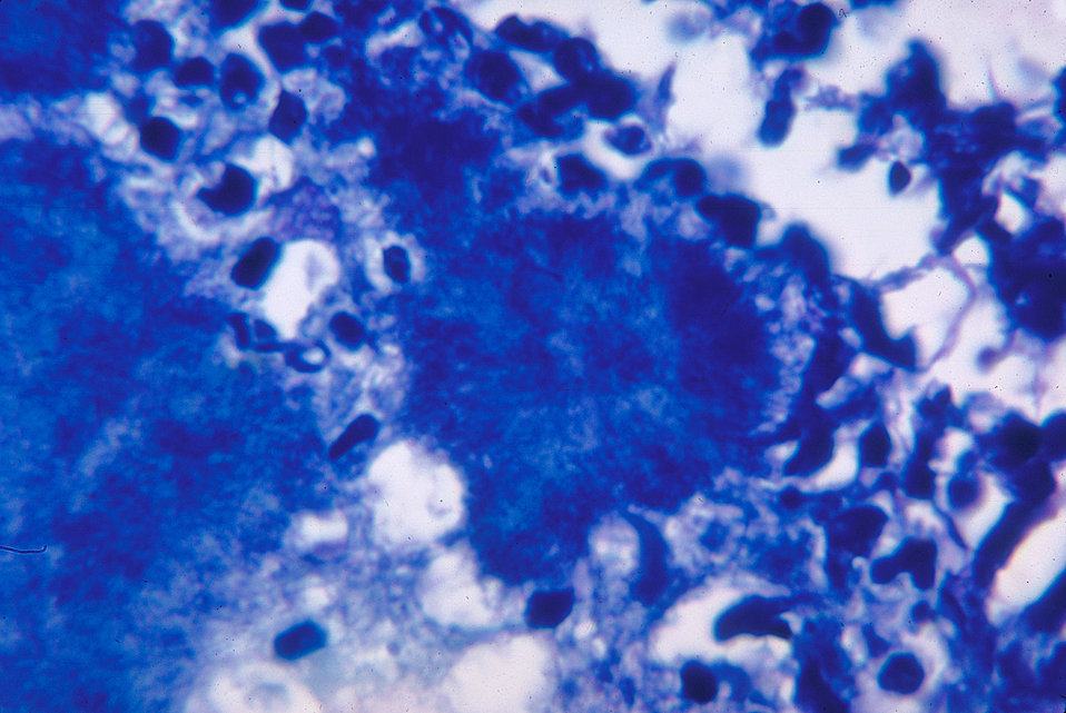 This micrograph depicts histopathologic changes due to the gram-positive organism, Actinomyces israelii.