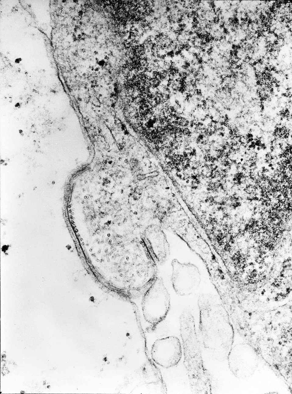 This transmission electron micrograph (TEM) revealed the presence of the human parainfluenza type 4A virus (HPIV-4A), which like the mumps v