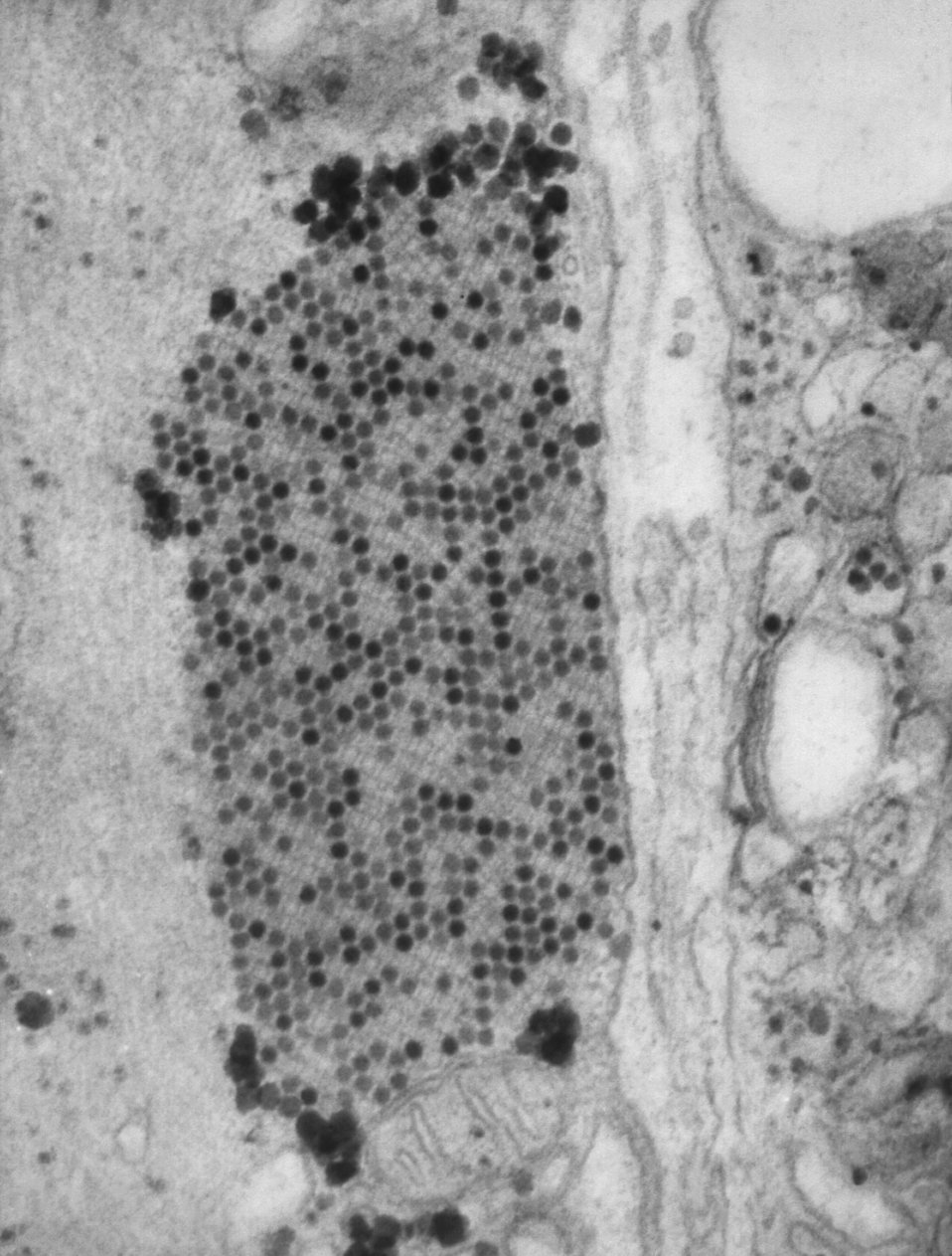 This transmission electron micrograph (TEM) revealed the presence of coxsackie B3 virus particles, which were found withing a specimen of mu